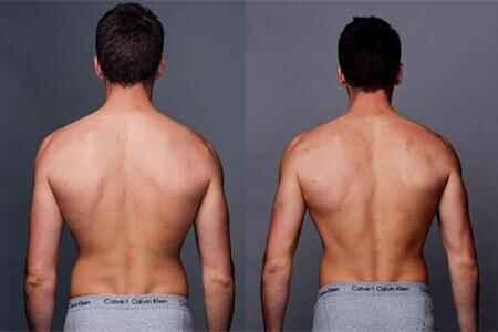蹦床运动前后身体背面对比